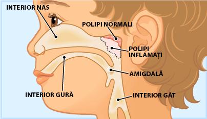 polipi inflamati