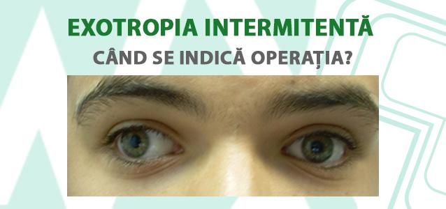 exotropia intermitenta